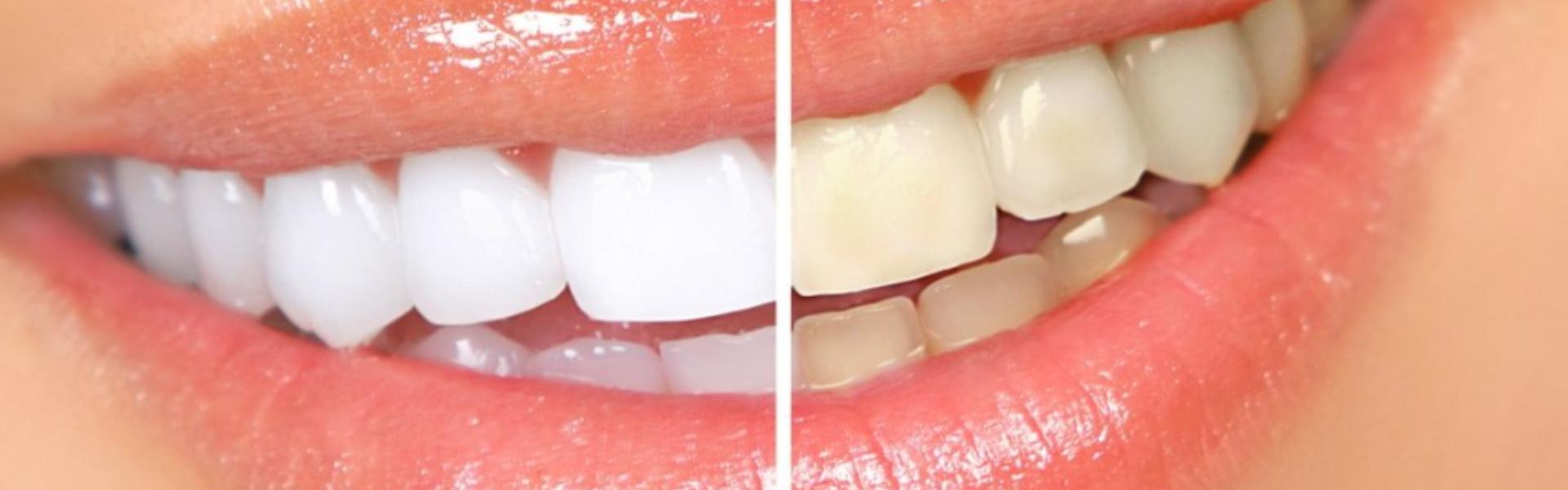 отбеливание зубов zoom фото после