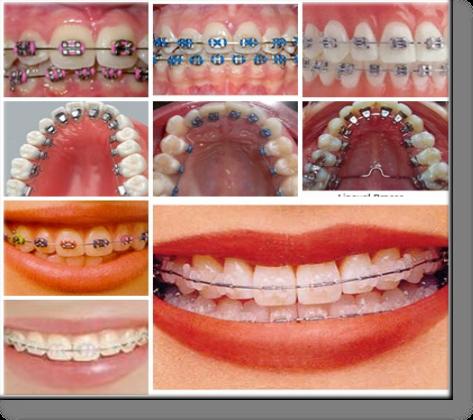 как выглядят зубы под винирами